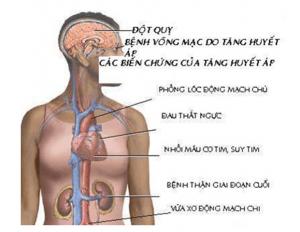 Cao huyết áp biến chứng3