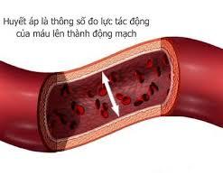 Cao huyết áp biến chứng1