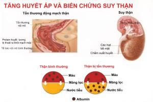 tăng huyết áp và biến chứng suy thận